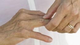 El 12 de octubre se celebra el Día Mundial de la Artritis Reumatoide Entre el 0.5 % y el 1.6% de peruanos tiene Artritis Reumatoide dependiendo de la región analizada, según el doctor Manuel Ferrándiz, Presidente de la Sociedad Peruana de Reumatología